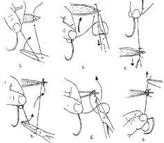 43 Best Nursing (Stitches/Sutures) images in 2013