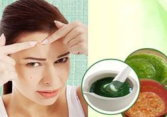 Home Remedies for Pimples : 3 Homemade Masks to Treat Acne! Acne and pimples is one such problem that everyone of us, faces in life. So, home remedies for pimples will help you to fight against such skin problems! Natural Remedies For Rosacea, Home Remedies For Pimples, Acne Remedies, Dengue Remedies, Egg Hair Mask, Egg For Hair, Acne Rosacea, Acne And Pimples, Acne Scars
