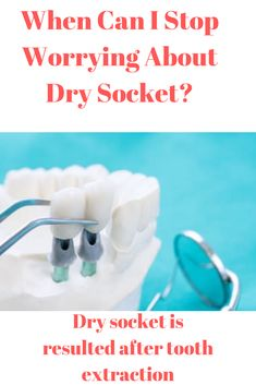 Dry socket is a complication resulting from tooth extraction. Discover what you need to know about this problem and when you need to stop worrying about it. Health And Beauty Tips, Health Tips, Health And Wellness, Cold Home Remedies, Cough Remedies, Healthy Mind, How To Stay Healthy, Juicing For Health, Stop Worrying