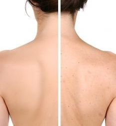 Back acne is not a good look for us...here's how to get rid of it. oh thank God that someone put htis on here.