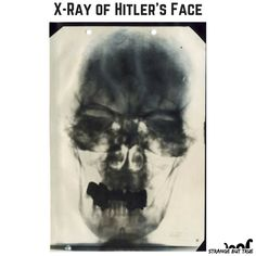 The mass murderer Adolf Hitler's X-Ray face looked scary too...