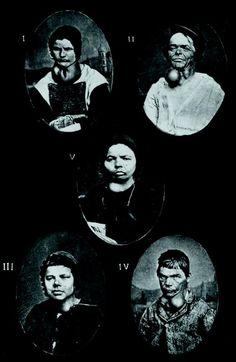 PsychiatryOnline | American Journal of Psychiatry | Henri Dagonet and the Origins of Psychiatric Photography