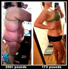 This has got to be one of the rawest, ballsy-est, realistic pic I've seen about weight loss. 250 lbs down to 173 lbs...HUGE CONGRATS TO HER!!!
