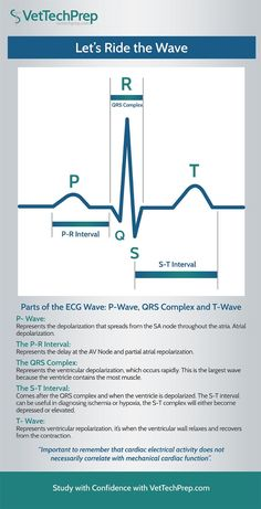 Infographic: Parts of the ECG Wave - Nursing Meme - Infographic: Parts of the ECG Wave Nursing School Notes, Icu Nursing, Funny Nursing, Nursing Schools, Pharmacology Nursing, Medical School, Vet Tech Student, Nursing Students, Student Memes