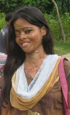 Bangladesh, this is so EVIL, It is very easy for a man to get sulphuric acid if he wants to attack a woman he does not like. The country has become a hot spot for acid attacks. A disfigured woman is not able to get married or get a job
