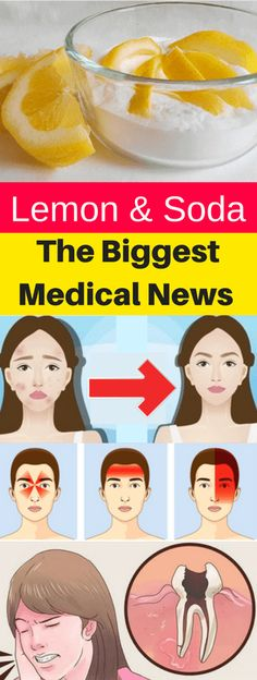 The Biggest Medical News Lemon & Soda!!! - All What You Need Is Here
