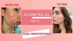 Here is an Accutane review for anyone considering going on it, especially if you are no longer in your teen years! I go over the timeline, cost, side effects, and must-have products.   Amazon Shop: www.amazon.com/shop/meganquist Panda's Dream, What To Use, Cetaphil, Cleansing Oil, Side Effects, Clear Skin, Timeline, All About Time, Facial
