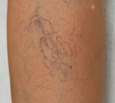 Spider Veins and Thread veins are the small yet unsightly clusters of pink and purple thread like veins that lie near the surface of the skin.