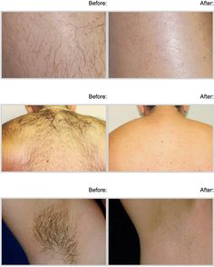 159 Best Laser Hair Removal Images Laser Hair Removal Hair