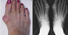 Gout is joint inflammation (arthritis) caused by crystals from the uric acid in the joints. That is actually accumulated salt.Things that contribute in formation of these crystals are: flu, angina,… Get Rid Of Bunions, How To Cure Gout, Arthritis Causes, Reflexology Massage, Uric Acid, Feet Care, Natural Medicine, Health And Wellbeing, Diet And Nutrition