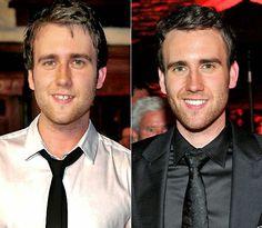Actor Matthew Lewis before and after veneers. #dentistry