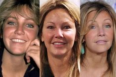 jennifer aniston before and after nose job Plastic Surgery Quotes, Bad Plastic Surgeries, Plastic Surgery Gone Wrong, Bad Celebrity Plastic Surgery, Celebrity Surgery, Actress Without Makeup, Celebs Without Makeup, Botox Before And After, Celebrities Before And After