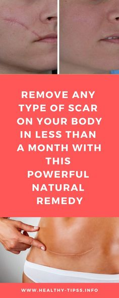 56 Ideas Skin Care Scars Natural Treatments For 2019 Natural Remedies For Osteoarthritis, Natural Remedies For Congestion, Natural Remedies For Anxiety, Natural Home Remedies, Cystic Acne Remedies, Scar Remedies, Holistic Remedies, Skin Care Remedies, Cold Remedies
