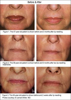 Before & After skin needling technology creates a collagen stimulating micro injury, with out pain or downtime. This treatment is ideal for acne scars, fine lines, stretch marks and improving the skin density (anti aging). Laser Acne Scar Removal, Dermapen Microneedling, Skin Needling, Lip Wrinkles, Acne Remedies, How To Treat Acne, Anti Aging Cream, Acne Scars, Stretch Marks