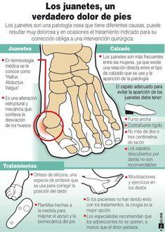 Los juanetes de los pies: causas y tratamientos. #juanetes #infografía #infographic