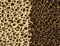 What is osteopenia and how is it related to osteoporosis? Read this article to learn the subtle differences between these conditions.
