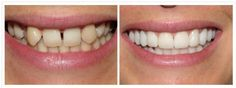There is a difference between a restorative dentistry and cosmetic dentistry, and although the outcomes are the same, they involve different circumstances. Smile makeovers are 100% elective cosmetic procedures to improve the look of your smile. Although your smile will look like you had the entire mouth restored after cosmetic procedures, you will avoid the pain and dire health circumstances that usually mandate a smile restoration.