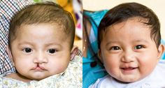 SMILE! It's Operation Smile Cambodia's 10th Birthday! http://ow.ly/9n5rh Since 2002, Operation Smile Cambodia has provided over 2,821 free surgeries in 7 different sites across the country for children like Sophetra.