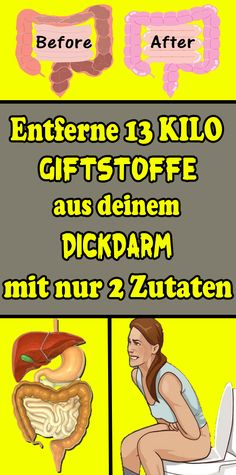 Entferne 13 Kilo Giftstoffe aus deinem Dickdarm mit nur 2 Zutaten Remove 13 kilos of toxins from your colon with only 2 ingredients Health Cleanse, Health Diet, Health And Nutrition, Sports Nutrition, Fitness Nutrition, Eco Slim, Lose Weight At Home, Health Remedies, Weight Loss