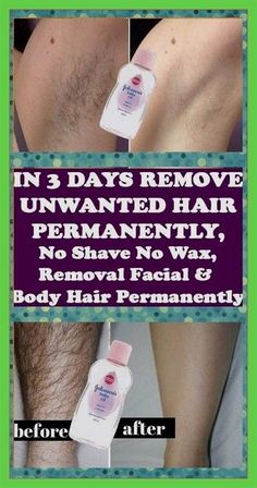 REMOVE UNWANTED HAIR PERMANENTLY IN THREE DAYS, NO SHAVE NO WAX, REMOVAL FACIAL & BODY HAIR PERMANENTLY #BestPermanentHairRemoval Permanent Facial Hair Removal, Hair Removal For Men, Hair Removal Remedies, Hair Removal Methods, Leg Hair, Hair Removal Machine, Unwanted Hair, Unwanted Facial, Shaving