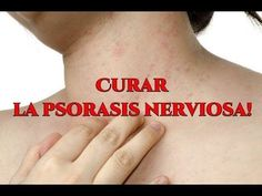 Psoriasis Nerviosa en el Cuero Cabelludo | Psoriasis Nerviosa!!!