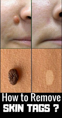 Skin tags are known as Acrochorda and they're in reality small skin growths that were caused by waxing or frictions. They usually appear on the armpits, neck, chest, face, and across the groin. Natural Wart Remedies, Cold Remedies, Sleep Remedies, Herbal Remedies, Garlic Uses, Skin Moles, Acne Skin, Skin Growths, Skin Tag Removal