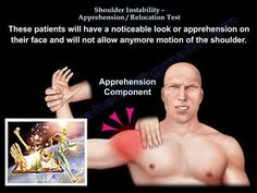 Ebraheim's animated educational video describing the Apprehension / Relocation Test - Should Instability. This test is used to determine if the patient h. Shoulder Impingement Syndrome, Physical Therapy School, Rotator Cuff Tear, Bone And Joint, Athletic Training, Sports Medicine, Neurology, Chiropractic, Bodies