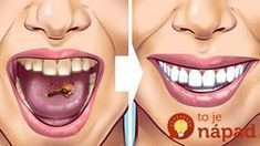 Tartar stains on your teeth can lead to several problematic issues resulting in weak teeth and even teeth loss in early age. Here are 10 helpful and proven natural remedies to get those ugly tartar stains removed from your teeth. Detox Drink Before Bed, Drinks Before Bed, Baking Soda Benefits, Remover Manchas, Fat Burning Detox Drinks, Natural Teeth Whitening, Teeth Care, Lemon Essential Oils