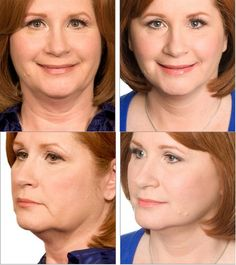Sagging neck and jowls- Sherrie, age, 55 had the Lifestyle Lift face and neck firming procedures.