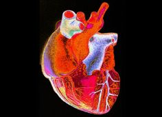 A digitally enhanced image of a model human heart.    Credit: Gordon Museum, Wellcome Images.