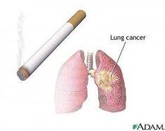 Stop Smoking Methods