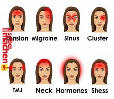 Stronger headaches can even last for couple of days. So, if you wonder what is the real cause for all those headaches, read thi… | Beauty Tips For Ski