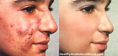 The Best Herbs for cystic acne due to hormone imbalance.  Including Other Natural Acne Treatments