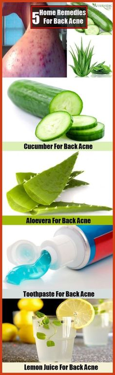 Homemade Acne Remedies - No More Acne With Holistic Acne Regimes ** Click on the image for additional details. #blemishes