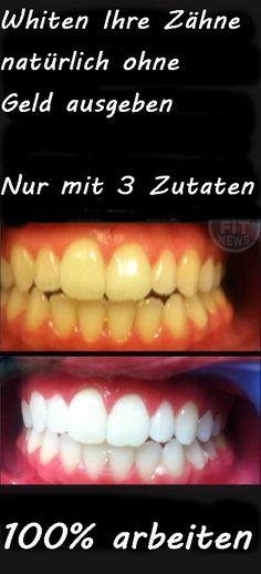 Bleichen Sie Ihre Zähne natürlich ohne Geld ausgeben