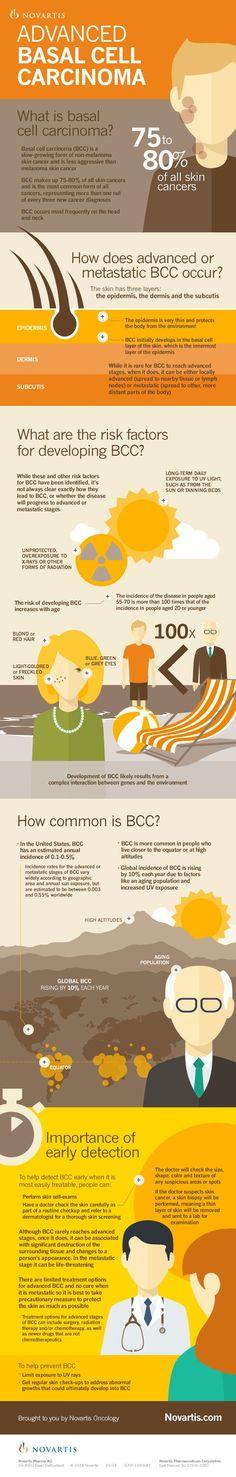 Understanding Advanced Basal Cell Carcinoma: