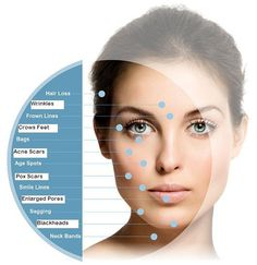 """Microneedling therapy is a process that is also referred to as """"collagen induction therapy."""" It is a minimally invasive treatment used to rejuvenate the skin. It can smooth fine lines, minimize wrinkles and correct minor skin imperfections. Cosmetic Treatments, Anti Aging Treatments, Skin Treatments, Skin Needling, Fountain Of Youth, Derma Roller, Pores, Aging Process, Hair And Beauty"""