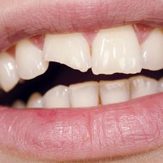 Its Easy (and Smart) to Fix a Chipped Tooth