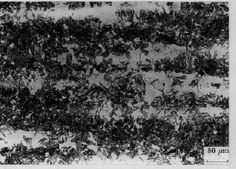 An optical micrograph showing a typical banded microstructure in steel. The solute-depleted regions have transformed in the solid state into bainite whereas the solute-enriched regions are martensitic.