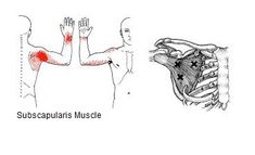 """What You Need To Know About """"Muscle Knots"""" or Trigger Points - HEALING ART COMMUNITY (HAC) Trigger Point Massage, Trigger Point Therapy, Knots In Neck Muscle, Sciatic Nerve Exercises, Human Body Anatomy, Tension Headache, Trigger Points, Funny Tattoos, Medical Illustration"""