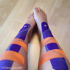 KT Tape for shin splints, love this tape... it's works on everything that has pains or needs to be held in place