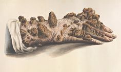 From weeping warts to leprosy: the gruesome art of medical illustration | Art and design | The Guardian