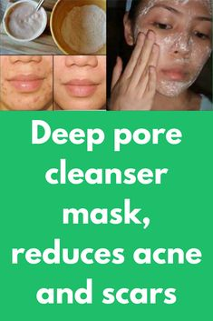 Deep pore cleanser mask, reduces acne and scars Today I am telling you about one powerful herbal mask, that will solve all your problems. It's suitable for all ages and all skin types. This mask will not only fight the acne but also kill the infection ca Acne Skin, Acne Scars, Pore Cleanser, Acne Remedies, Natural Remedies, Headache Remedies, Peeling, Skin Brightening, Deep