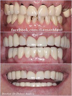 Free Phones, Dentistry, Crowns, Teeth, Number, Smile, Tooth, Smiling Faces, Dental