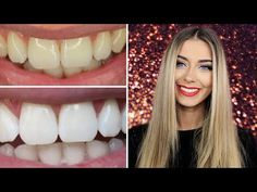 How I Whitened My Teeth at Home | Danielle Mansutti - YouTube