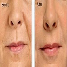 Best Beauty Diy Ideas :   Illustration   Description   Easiest Ways to Get Rid of Wrinkles    -Read More –   - #DIYBeauty