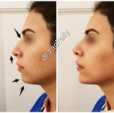 ▪️DERMA CONTOUR Package - Jawline Sculpting with cheekbones can contour and sharpen the facial features. This is one of the more difficult… Rhinoplasty Surgery, Nose Surgery, Chin Filler, Facial Procedure, Chin Implant, Nasolabial Folds, Face Lines, Clear Face, Beauty