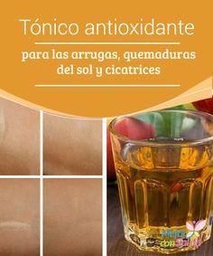 Tónico antioxidante para las arrugas, quemaduras del sol y cicatrices   Este tónico antioxidante es un producto de origen natural que se elabora con ingredientes ricos en nutrientes para mejorar la calidad de la piel ¡Prepáralo!