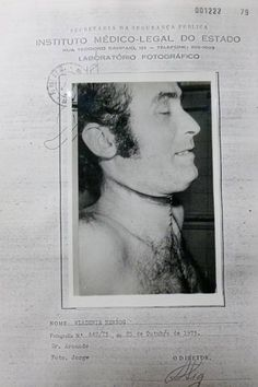 Foto do corpo do jornalista Vladimir Herzog tirada após a autópsia, em 25 de outubro de 1975; o jornalista morreu após sofrer torturas no DOI-Codi de SP.