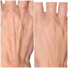 Μεσοθεραπεία με βιταμίνες και υαλουρονικο για το πάνω μέρος των χεριών μας